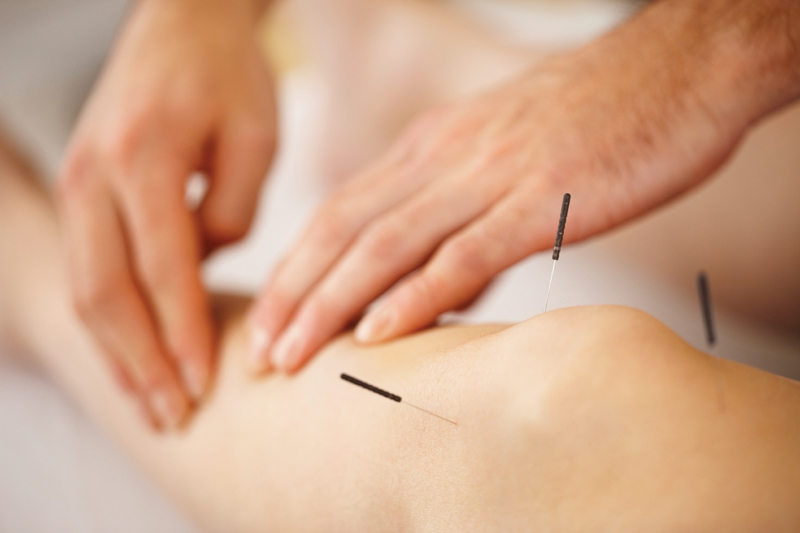 j-c-lincoln-health-acupuncture